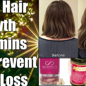 NATURAL VITAMINS FOR FASTER HAIR GROWTH IN MEN & WOMEN BEST HAIR GROWTH VITAMINS - STOP HAIR LOSS